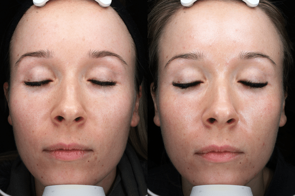 Before & After Plexr Non-Surgical Eyelift in Surrey 0