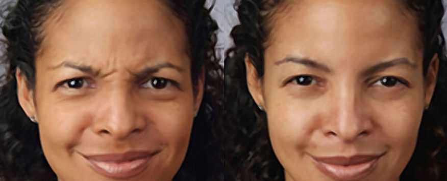 Before & After Botox in Surrey 0