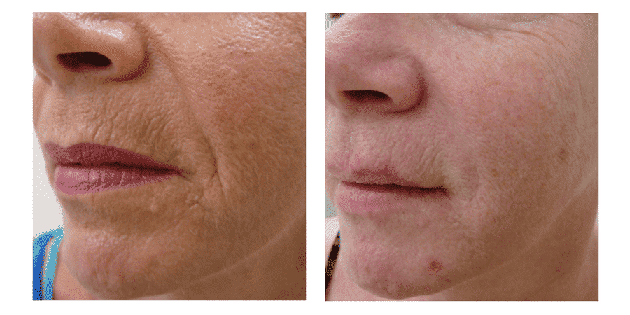 Introducing Our Fantastic New Laser Lift Clearlift