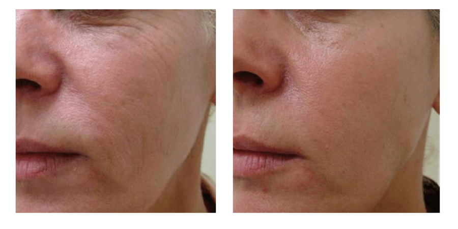 Clearlift In Surrey Hollywood Laser Facelift 20 Minute