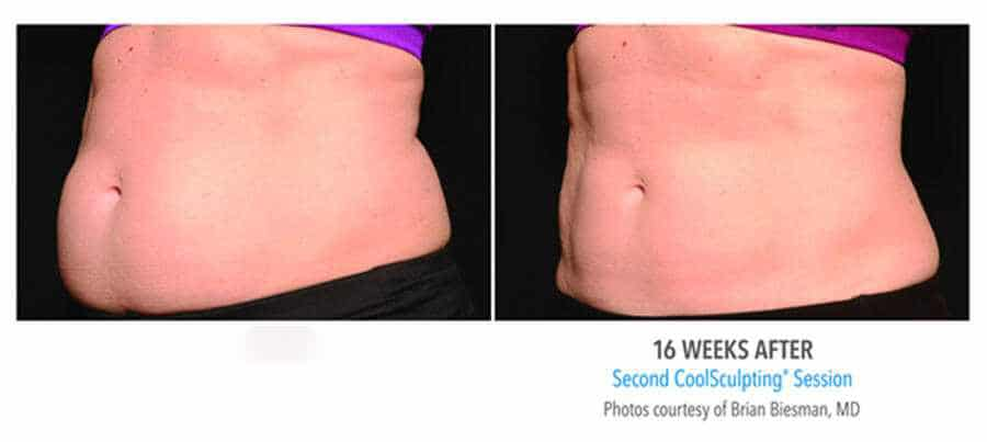Before & After CoolSculpting 0