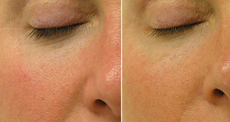 Image result for hydrafacial before and after one treatment