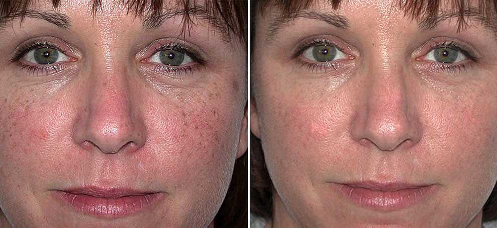 Before & After Skin Rejuvenation 0