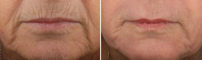 Before & After Skin Resurfacing with CO2 0
