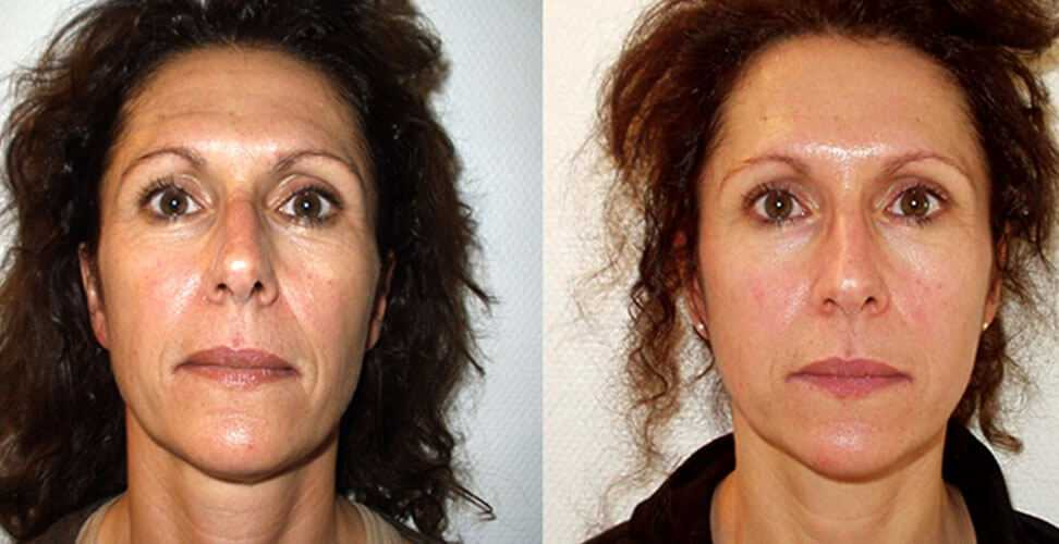 Prp Therapy In Surrey Revolutionary Vampire Facelift
