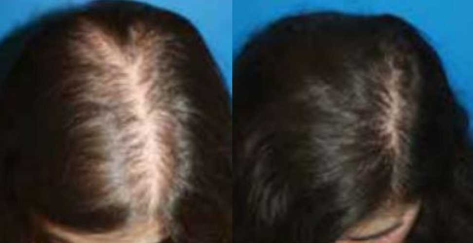 Before & After PRP Therapy in Surrey 0