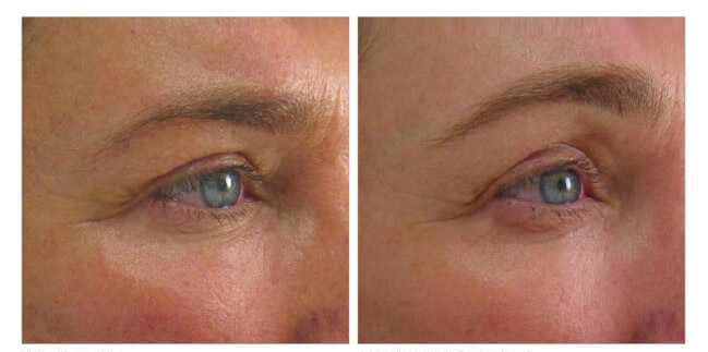 Before & After Non-Surgical Facelift 0