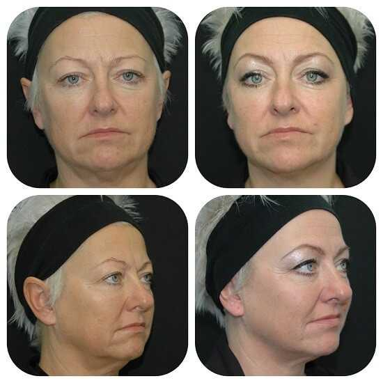 Ultherapy treatment - before & 3 months after treatment at health + aesthetics, Farnham, Surrey