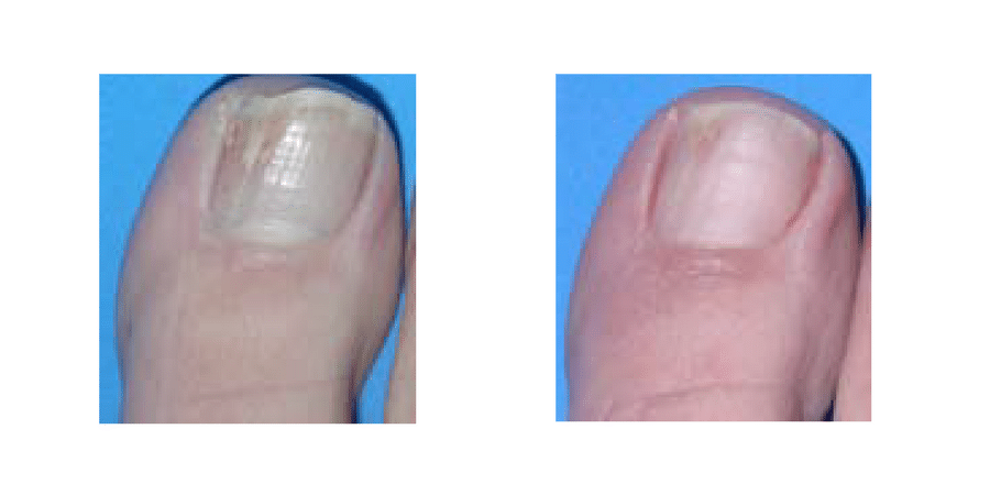 Before & After Fungal Nail Infection Treatment in Surrey 0