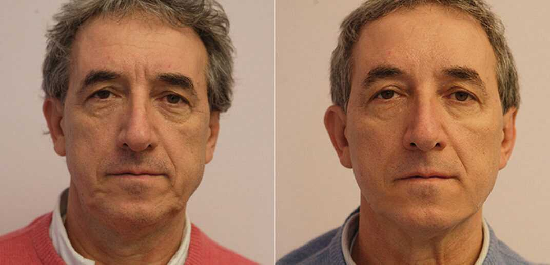 Before & After Thread Lift 0