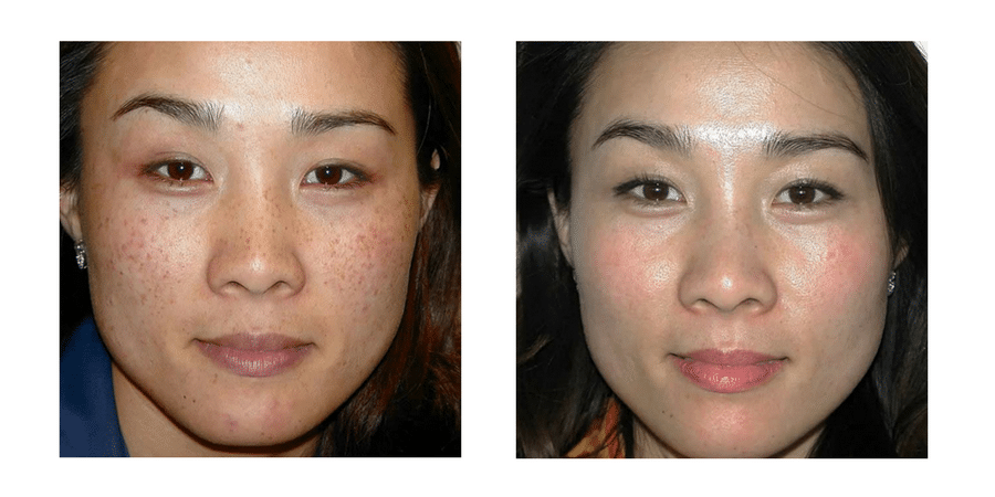 Before & After Pigmentation 0
