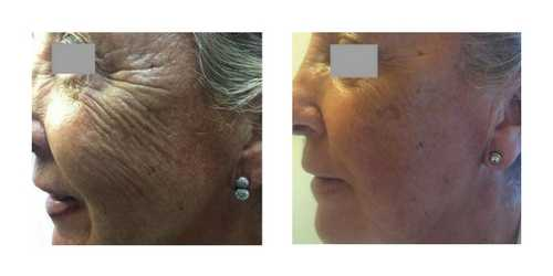 Before & After Super Skin Booster – Profhilo 0