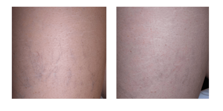 Before & After Thread Vein Removal in Surrey 0