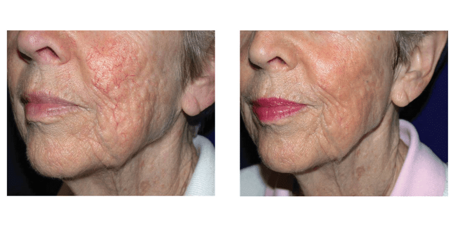 Before & After Rosacea Laser Treatment in Surrey 0