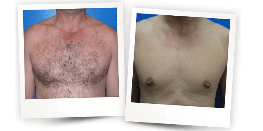 Before & After Painless Hair Removal 0