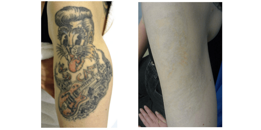 Before & After Tattoo Removal in Surrey 0