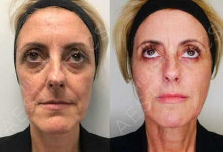 Dermal Fillers and Ultherapy