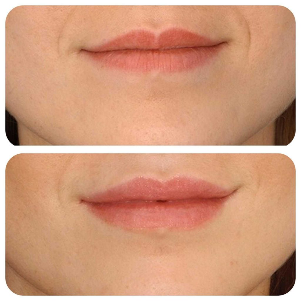 Lip Fillers treatment at health + aesthetics, Farnham, Surrey