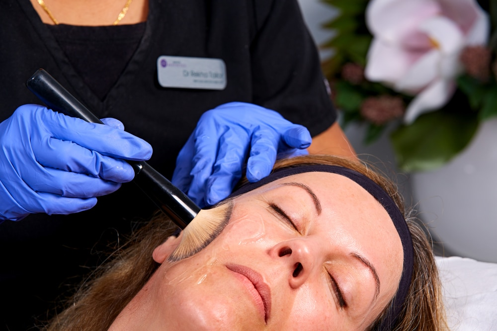 treat pigmentation with chemical peels