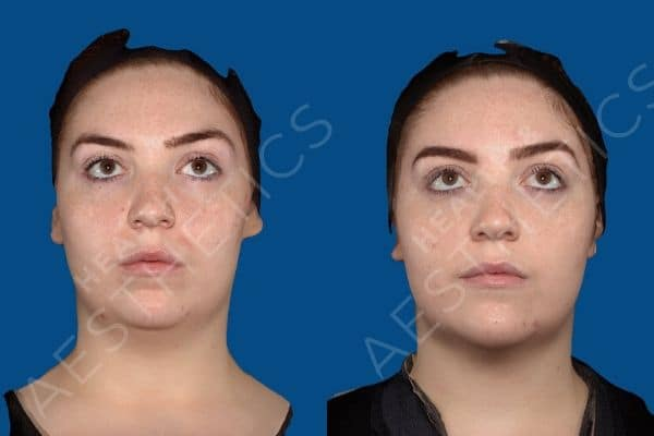 CoolSculpting and Dermal Fillers