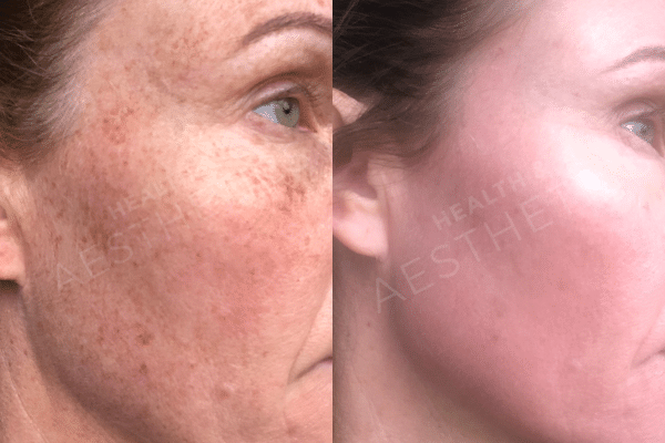 Zo Skin Health results