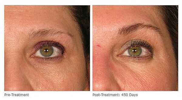 Before and after Ultherapy at health +aesthetics, Farnham, Surrey