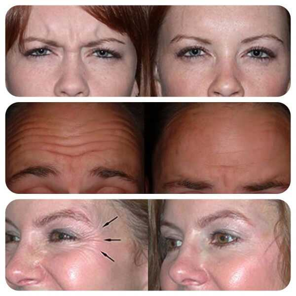 Treatment of frown lines, forehead lines & crows feet with Botox at health + aesthetics, Farnham, Surrey