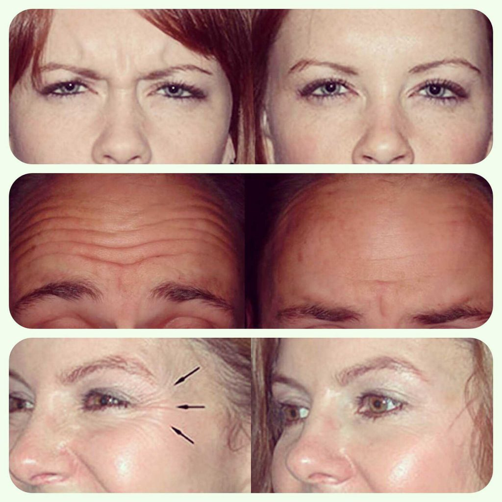 Botox before & after treatment at health + aesthetics, Farnham, Surrey