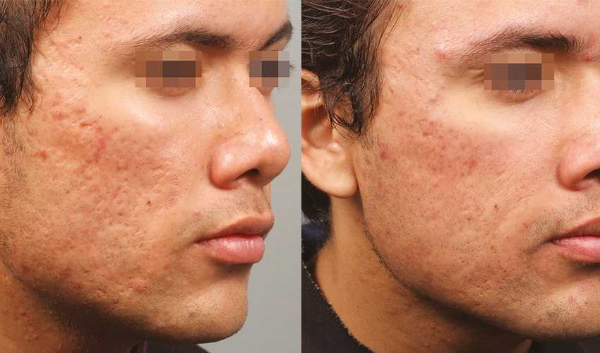 Before & After Scar Removal in Surrey 4