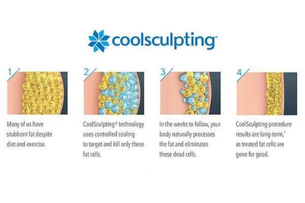 CoolSculpting Chart at health + aesthetics