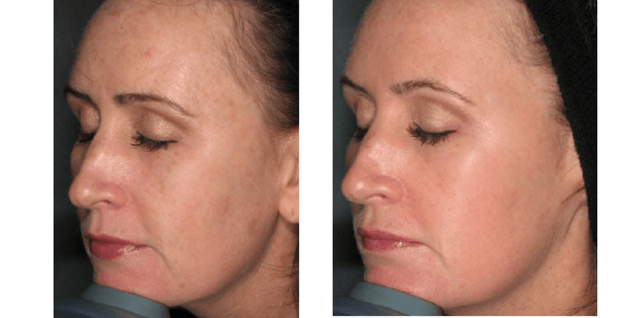 Before & After ClearLift Laser Facelift in Surrey 0