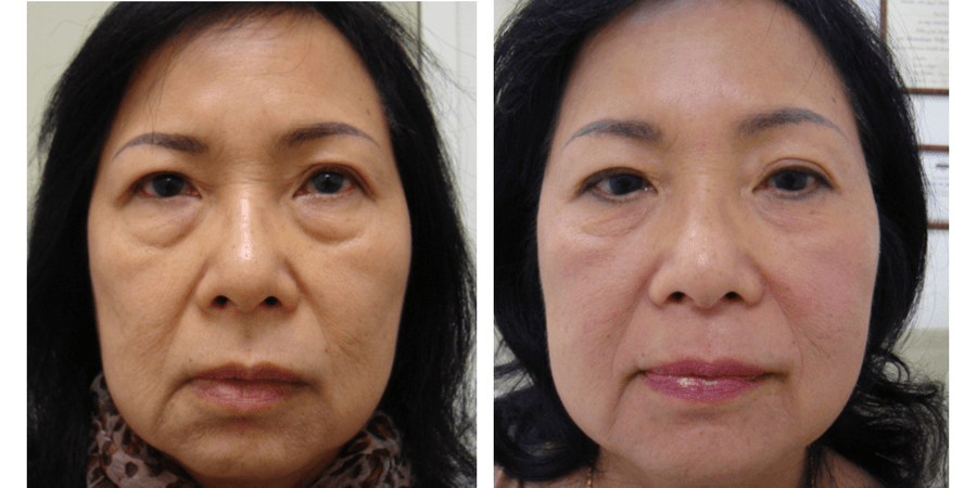 Clearlift facelift results