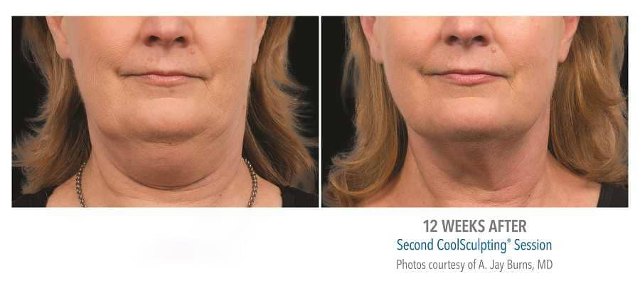 Before and after pictures of woman with double chin treated with CoolSculpting