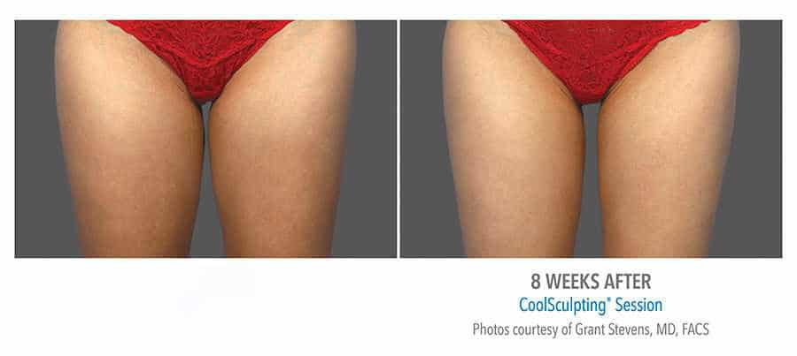 Before & After CoolSculpting (Fat Freezing) in Surrey 0