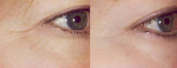 Crows feet before and after a course of Dermalux LED Light treatments