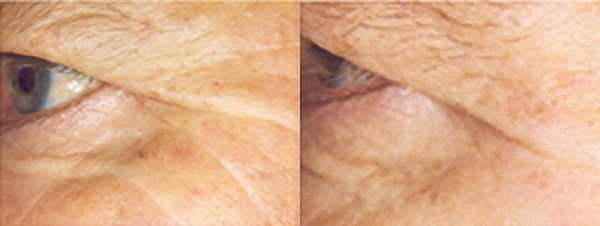 Crows feet before and after a course of treatments with Dermalux LED Light Therapy