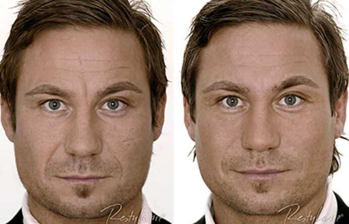 Before & After Dermal Fillers in Surrey 0
