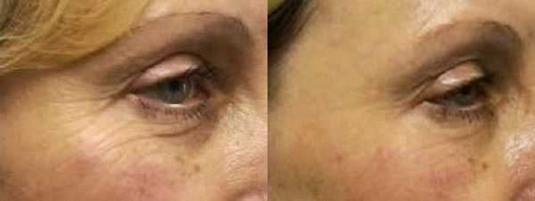 Fine lines improve following a course of Dermalux LED Light Therapy
