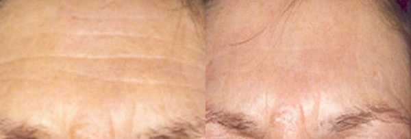 Forehead lines before and after a course of treatments with Dermalux LED Light Therapy