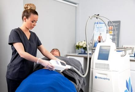 CoolSculpting in Surrey
