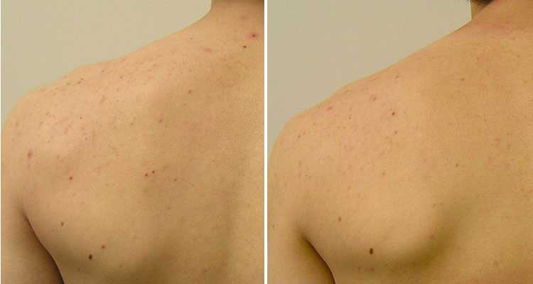 Before & After HydraFacial in Surrey 0