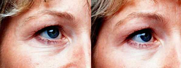 Improvement of fine lines before and after a course of Dermalux LED Light Therapy
