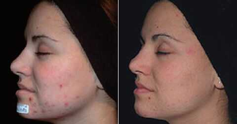 Woman with acne showing dramatic improvement following laser treatment