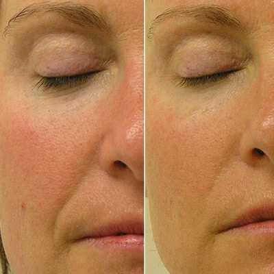 Improvement of lines, pores and lifting of the face following hydrafacial treatment