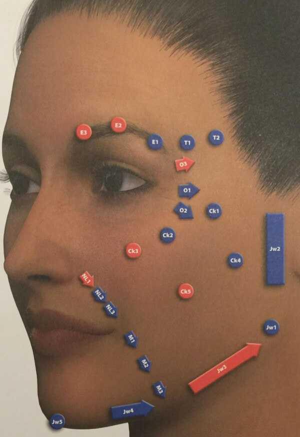 MD Facial Codes