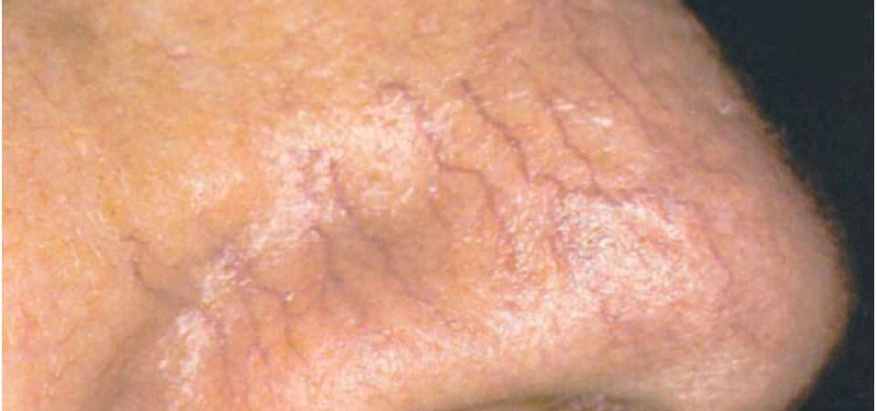 Thread veins or telangiectasia on the surface of the skin.