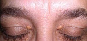 Xanthelasma or cholesterol deposits seen around the eyes.