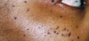 Dermatosis Papulosa Nigra seen all over the face