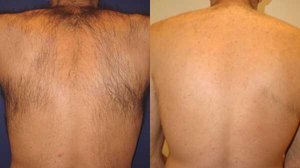 Soprano ICE painless laser hair removal at health + aesthetics, Farnham, Surrey