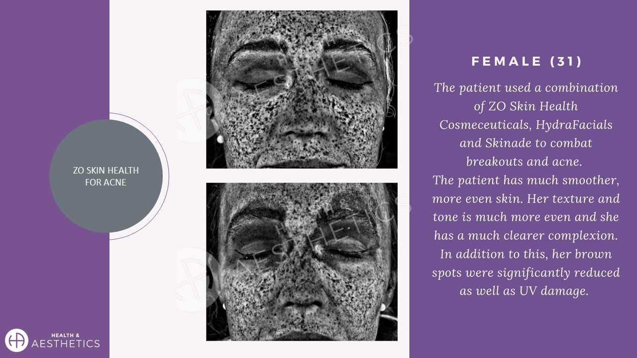 Acne Treatment Skincare ZO SKin HEalth
